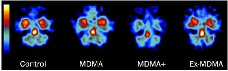 images of SERT binding in non-users vs current and former MDMA users