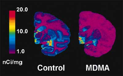 graphic of baboon brains SERT recovery after mdma neurotoxic damage