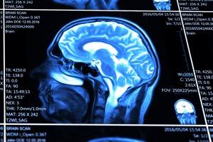 blue MRI brain scan
